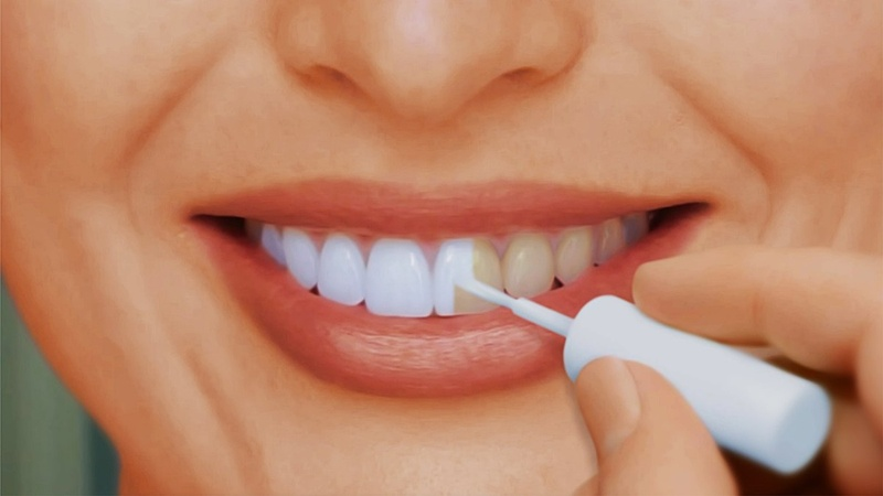 отбеливание зубов больно или нет фильм 2003